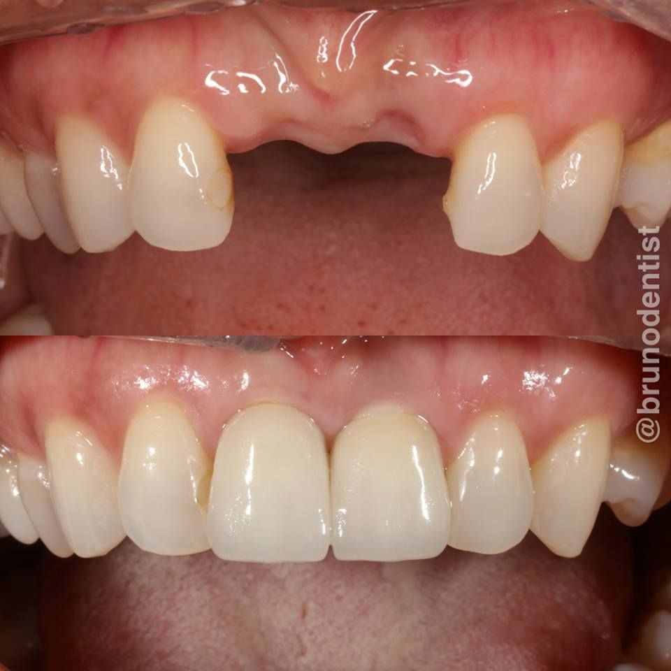 Replacement Of 2 Missing Front Teeth With Dental Implants