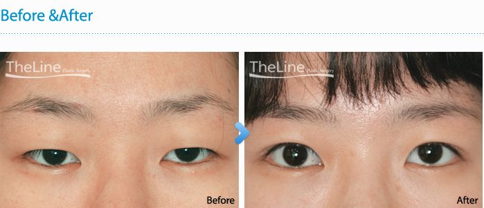 Non Incisional Ptosis Correction Korea (Eyes    | Double Eye