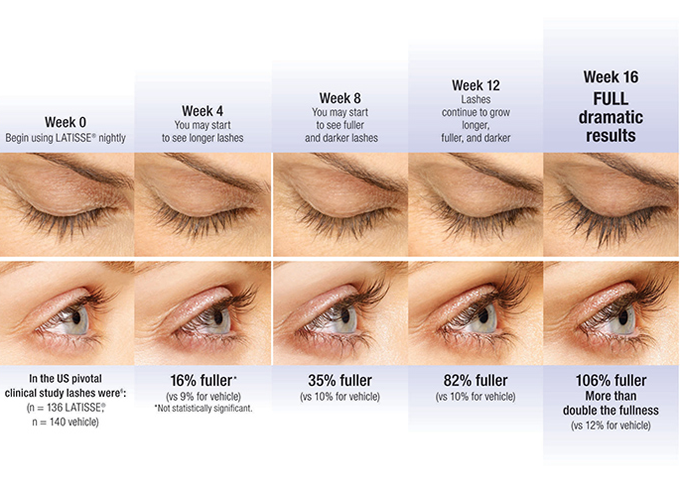 2faef5e47bb LATISSE-16-wk-progress Gradual results, but worth the wait! Fake eyelashes  can't compete with your own longer, fuller natural lashes.
