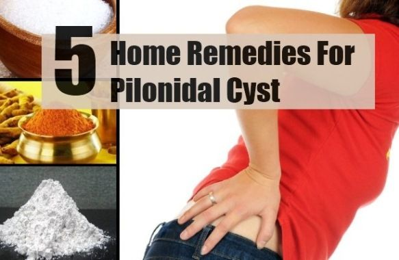Home Remedies For Pilonidal Cyst Pilonidal Cysts Pinterest