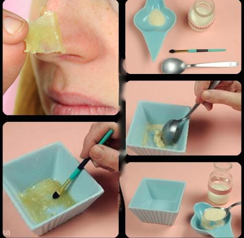 Cravos na pele- aprenda a fazer cera caseira que remove os pontinhos pretos