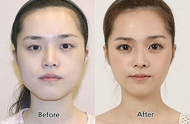 Community Post: 31 Crazy Before And After Photos Of Korean Plastic ...