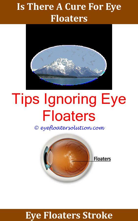 Dry Eye Floaters Cure | Makeupgenk com