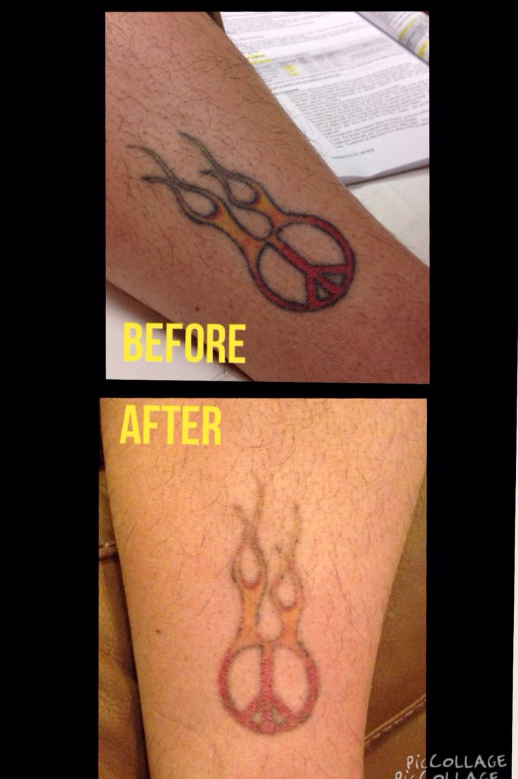 Before and after just two laser treatments at results
