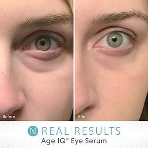 Age Iq Eye Serum Real Results Eye Serum Serum Plant