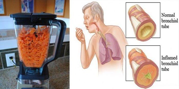 Wortelen: De Natuurlijke Voeding om hoest en slijm te verwijderen uit uw longen (Recept inbegrepen).