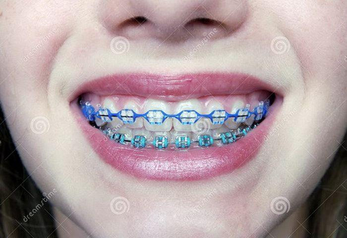 braces color ideas on ...
