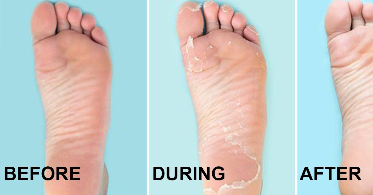 5 Best Foot Creams for Baby Soft Feet theFashionSpot