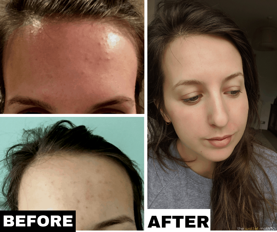 How I Cleared My Tiny Bumps On Forehead Once For All Forehead Bumps Forehead Acne Little Bumps On Forehead