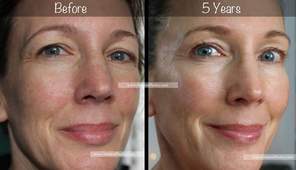 5 Year Retin A Results Before After For Wrinkles Anti Aging In 2020 Anti Aging Anti Aging Skin Care Deep Wrinkles
