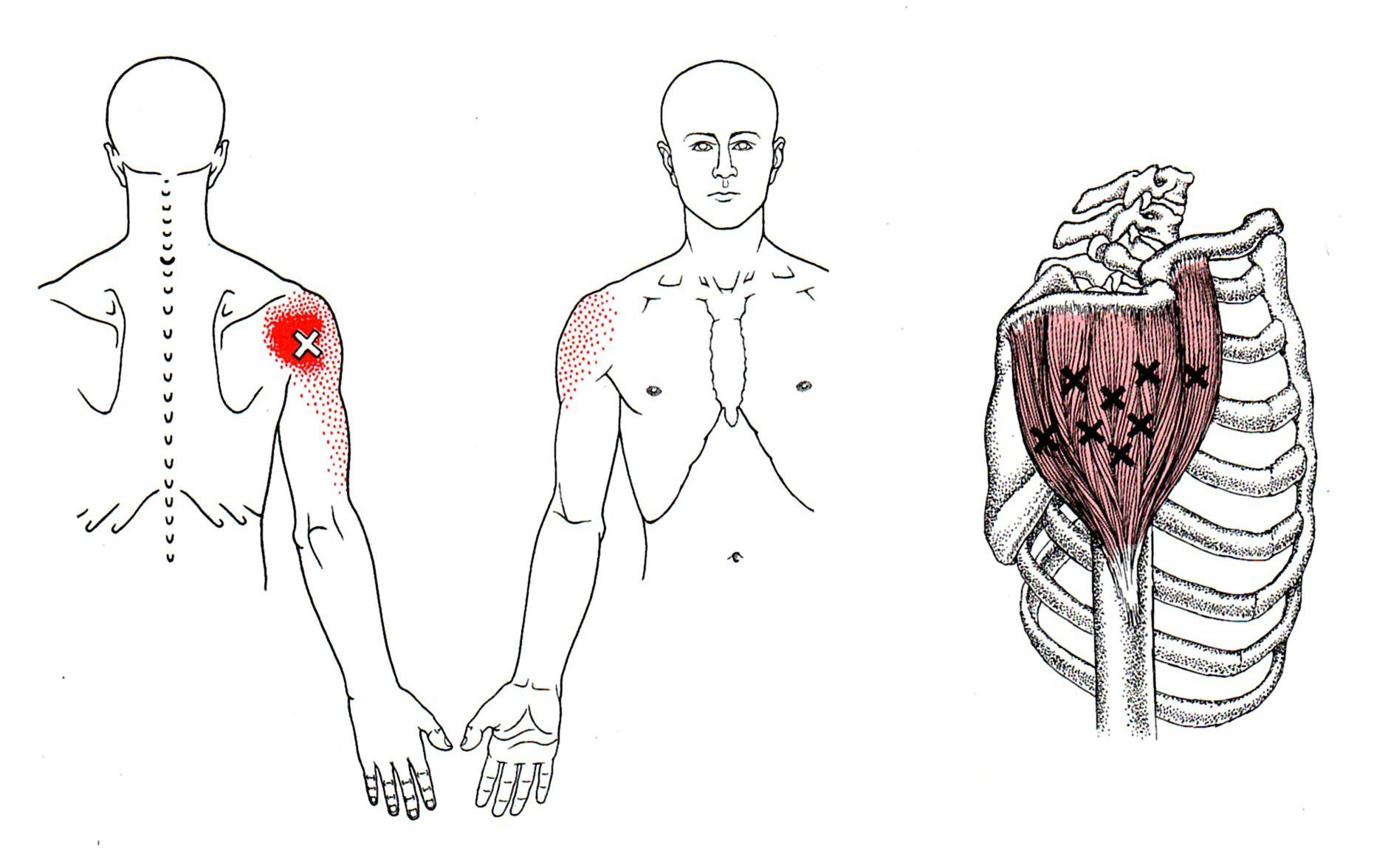 Deltoid | The Trigger Point & Referred Pain Guide. For Upper Back ...
