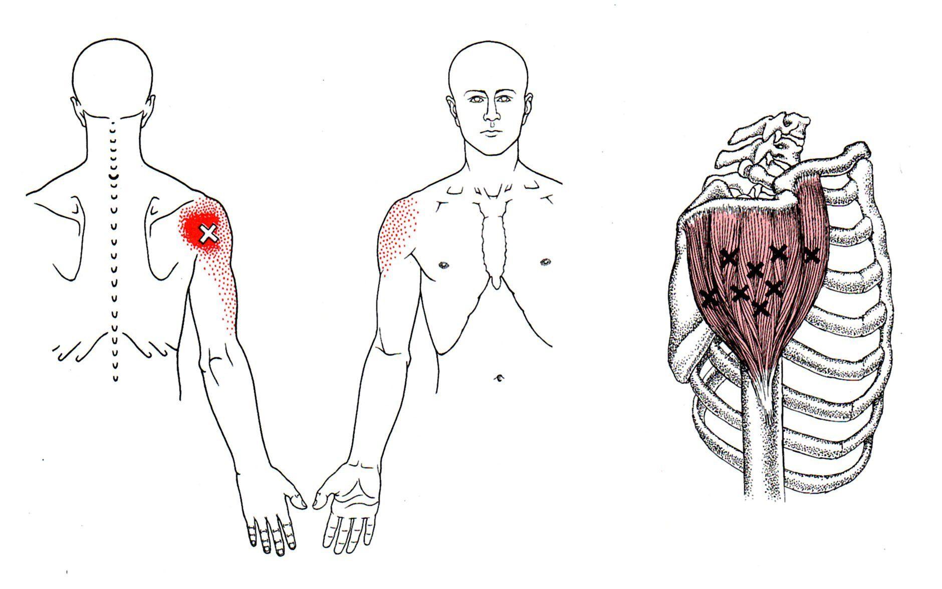 Pin On Back Pain Treatments