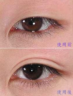 Before And After Eyelid Tape And Circle Lense Double Eyelid Double Eyelid Tape Cosplay Contacts