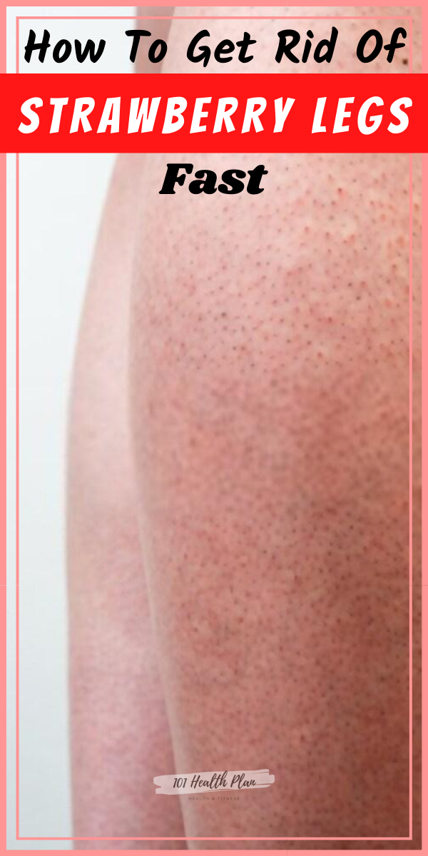 How To Get Rid Of Strawberry Legs Fast - 101 Health Plan -   17 how to get rid of strawberry legs fast ideas