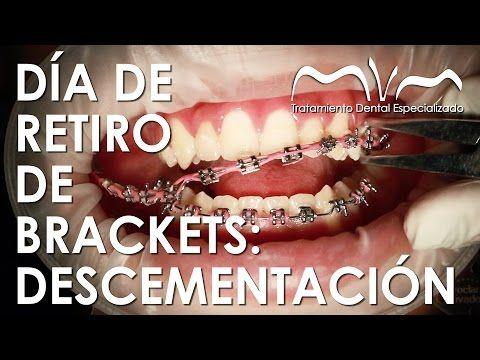Usos Y Funciones De Las Ligas Elasticas En Los Brackets Youtube Ortodoncia Brackets Ligas Para Brackets Ortodoncia