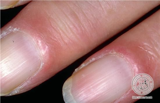 Localisation Proximal Nail Fold Of The Finger Periungual Fingernail Diagnosis Systemic Lupus Erythematosus