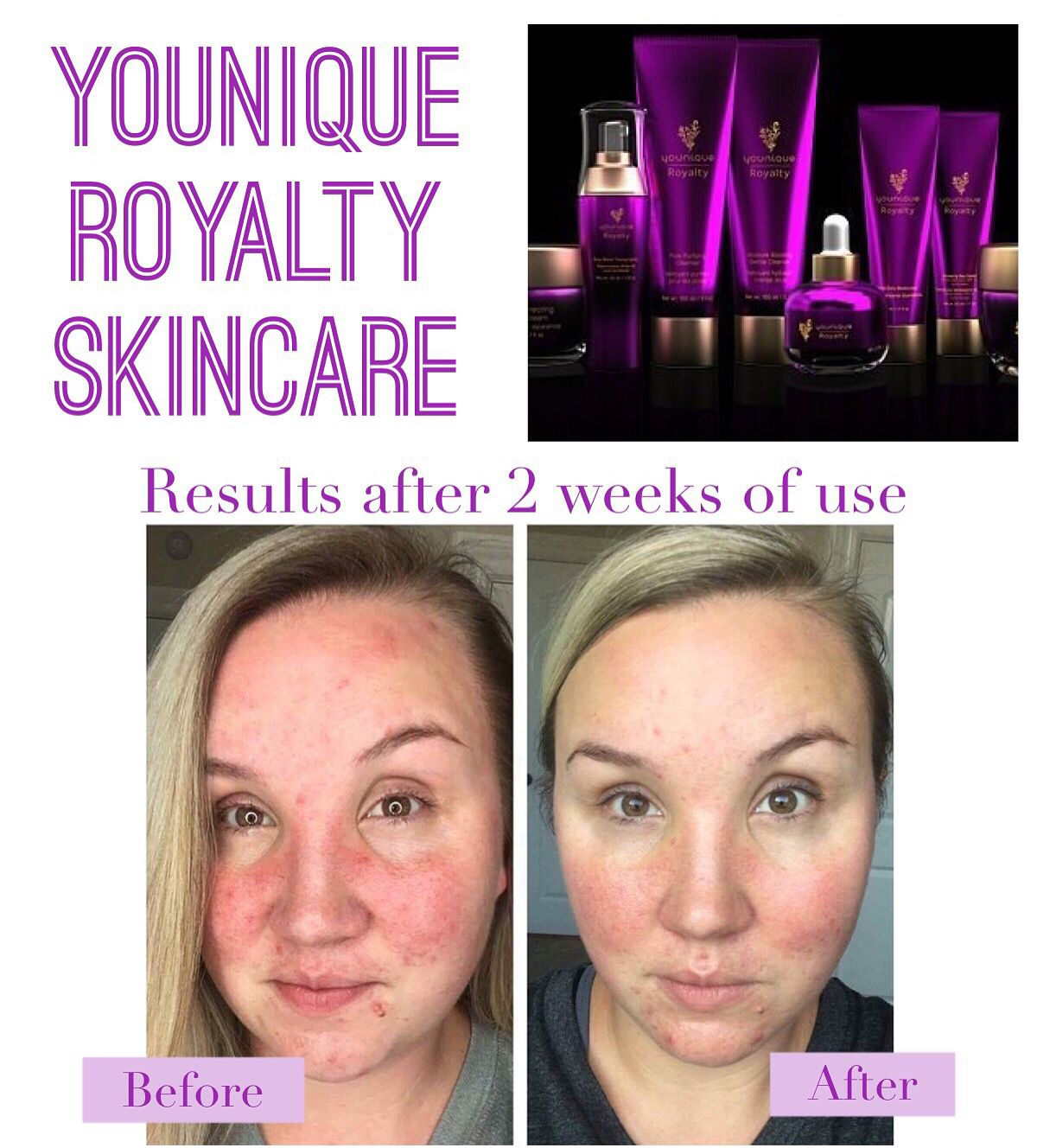 Diy Hair Growth Younique Skin Care Younique Royalty Skin Care