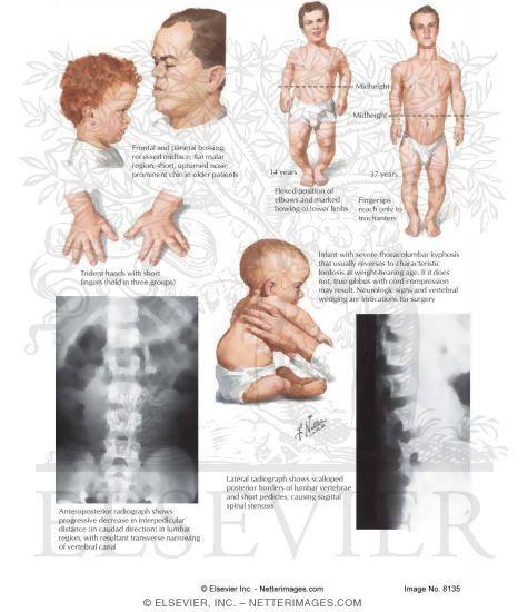 Achondroplasia - Symptoms, Achondroplasia treatment, cost ...