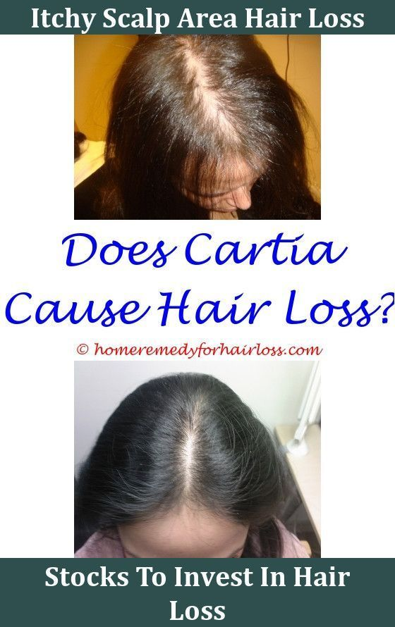 Loss Of Hair May Be Abnormal If You Are Shedding Even More
