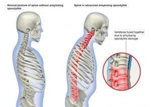 Ankylosing spondylitis signs symptoms and treatment 1 ankylosing spondylitis as is a chronic systemic inflammatory form of arthritis that preferentially affects the spine leading to limitation of spine publicscrutiny Choice Image