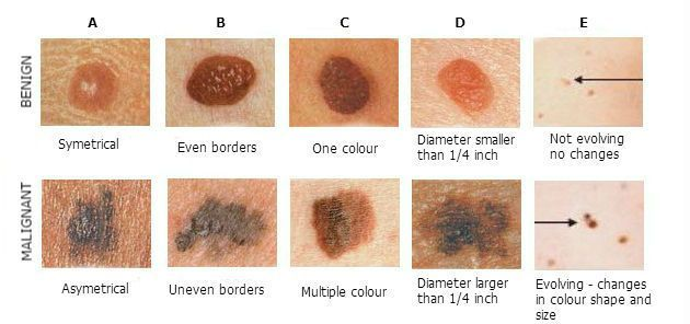 Not different types of moles on skin