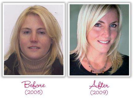 Weight loss success factors image 5