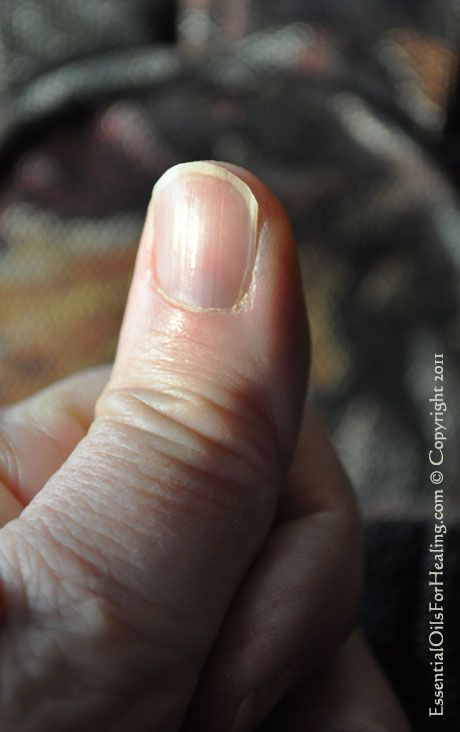 Weak Split Prone Nails? No More! Grapeseed oil does the trick. — www ...