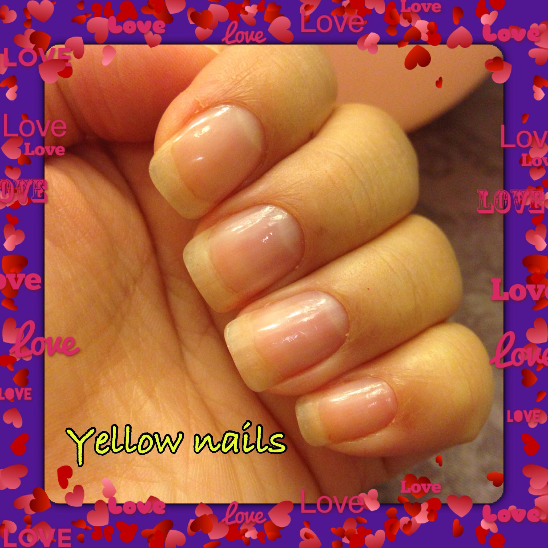 bd5a08c67fa2d8a79ce908592057843d - How To Get Rid Of Yellow Nails With Hydrogen Peroxide