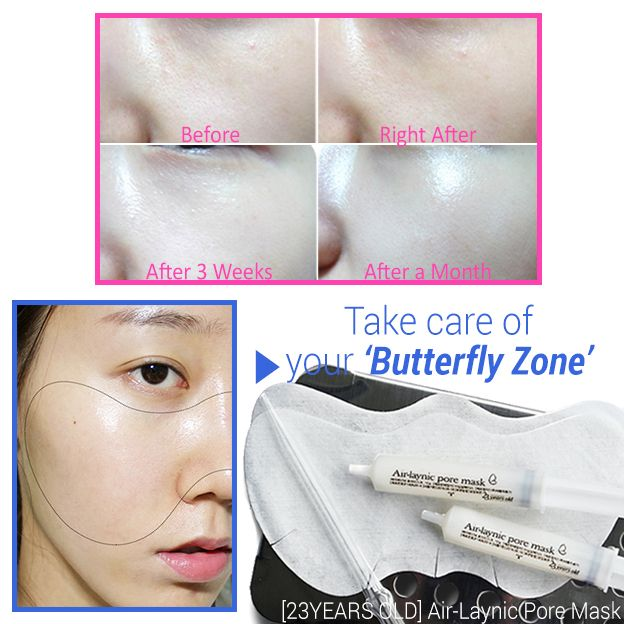 Do you know that almost skin problems such as blackheads, large pores and troubles come out on your 'Butterfly Zone'? It means that If you take care of your butterfly zone rightly, most of skin problems can be solved. Now you need this Air Laynic Pore Mask from 23Years Old.❤️
