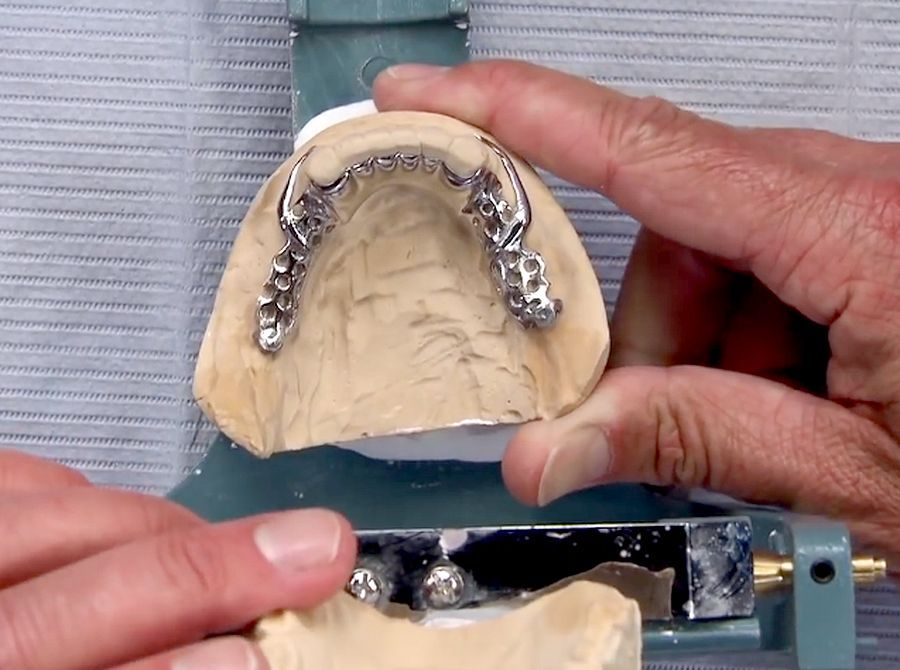 "PROSTHODONTICS: Achieving Retention and Support in a ""Slippery Slope"" Partial Denture Case"