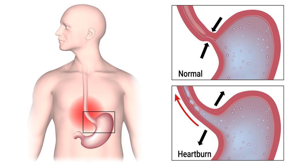 klonopin and heartburn