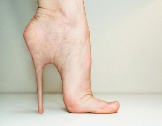 This is what happens when you wear those stilletos long enough!