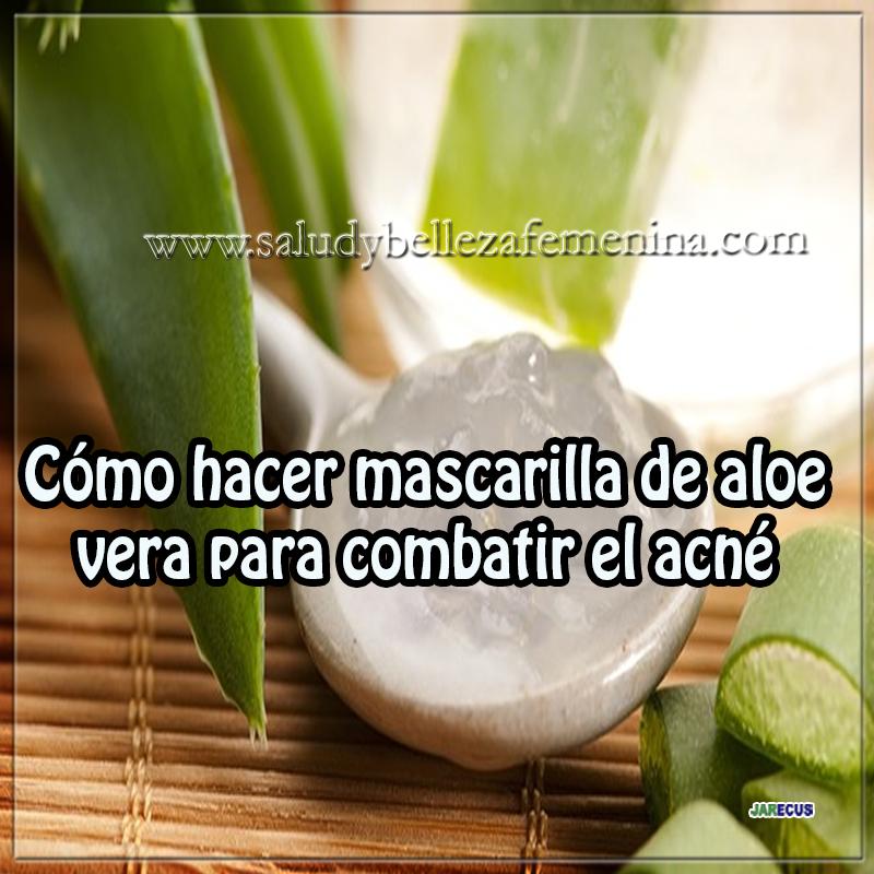 Cómo hacer mascarilla de aloe vera para combatir el acné