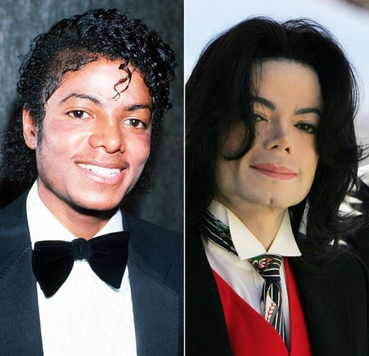Michael Jackson: Before and After Plastic Surgery. Oh ...