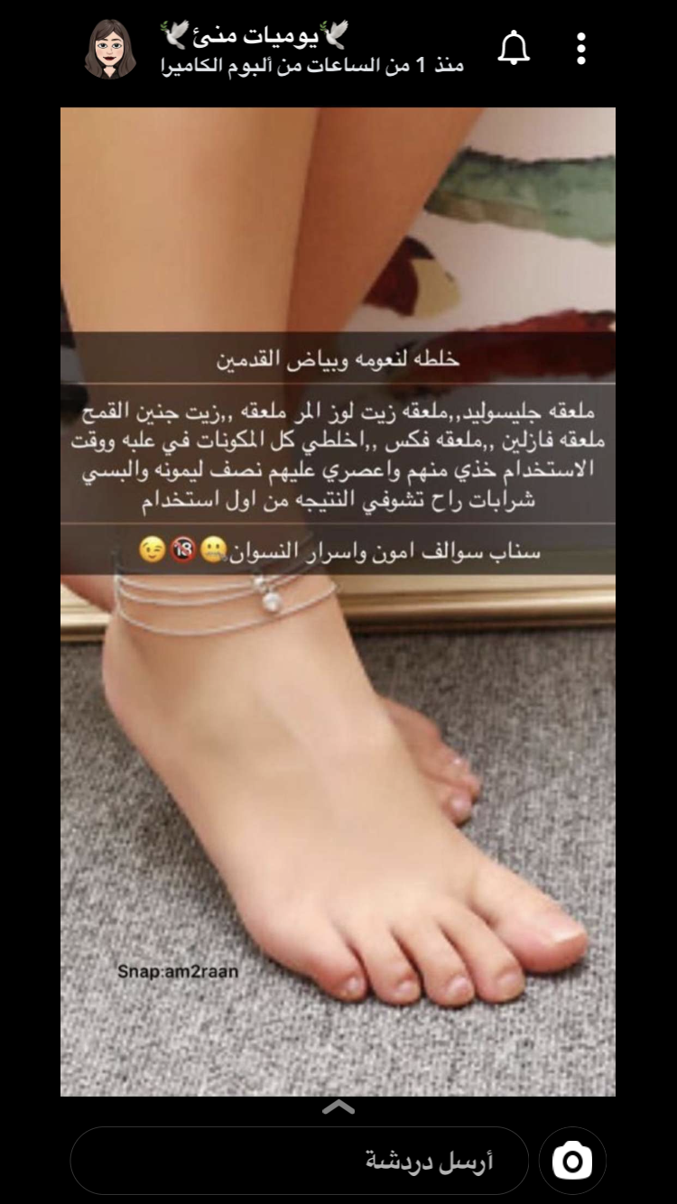 Pin By Rin Saad On خلطات Fitbit Wearable Snaps