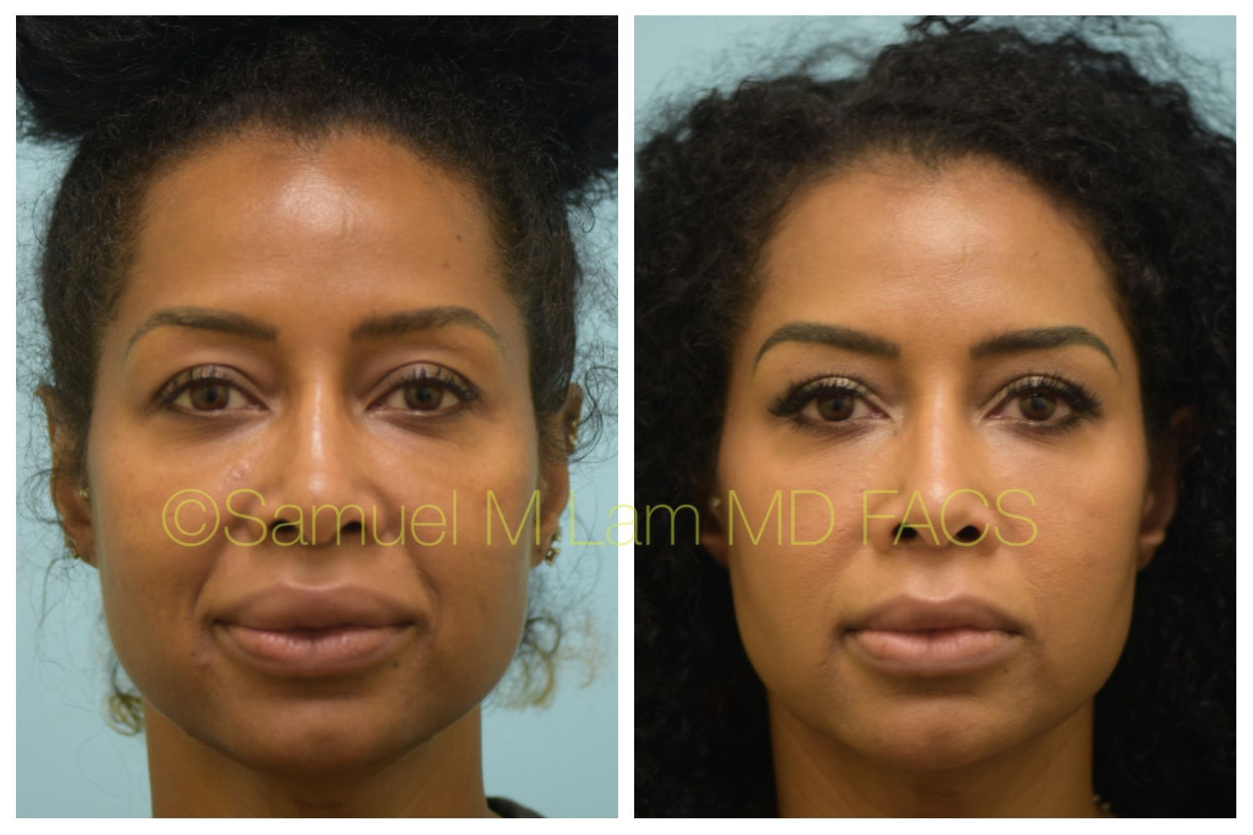 This African-American woman is shown before and 5 months
