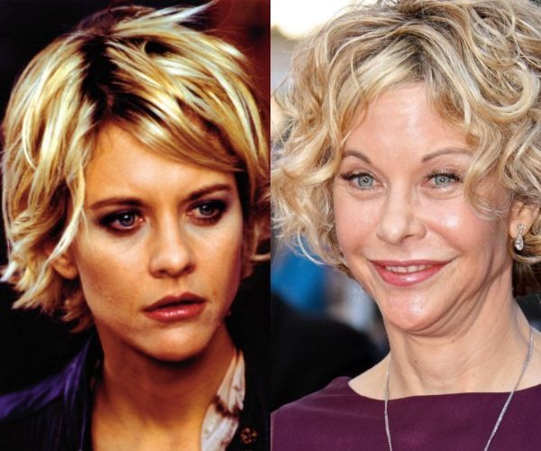 Image result for Meg Ryan botox face