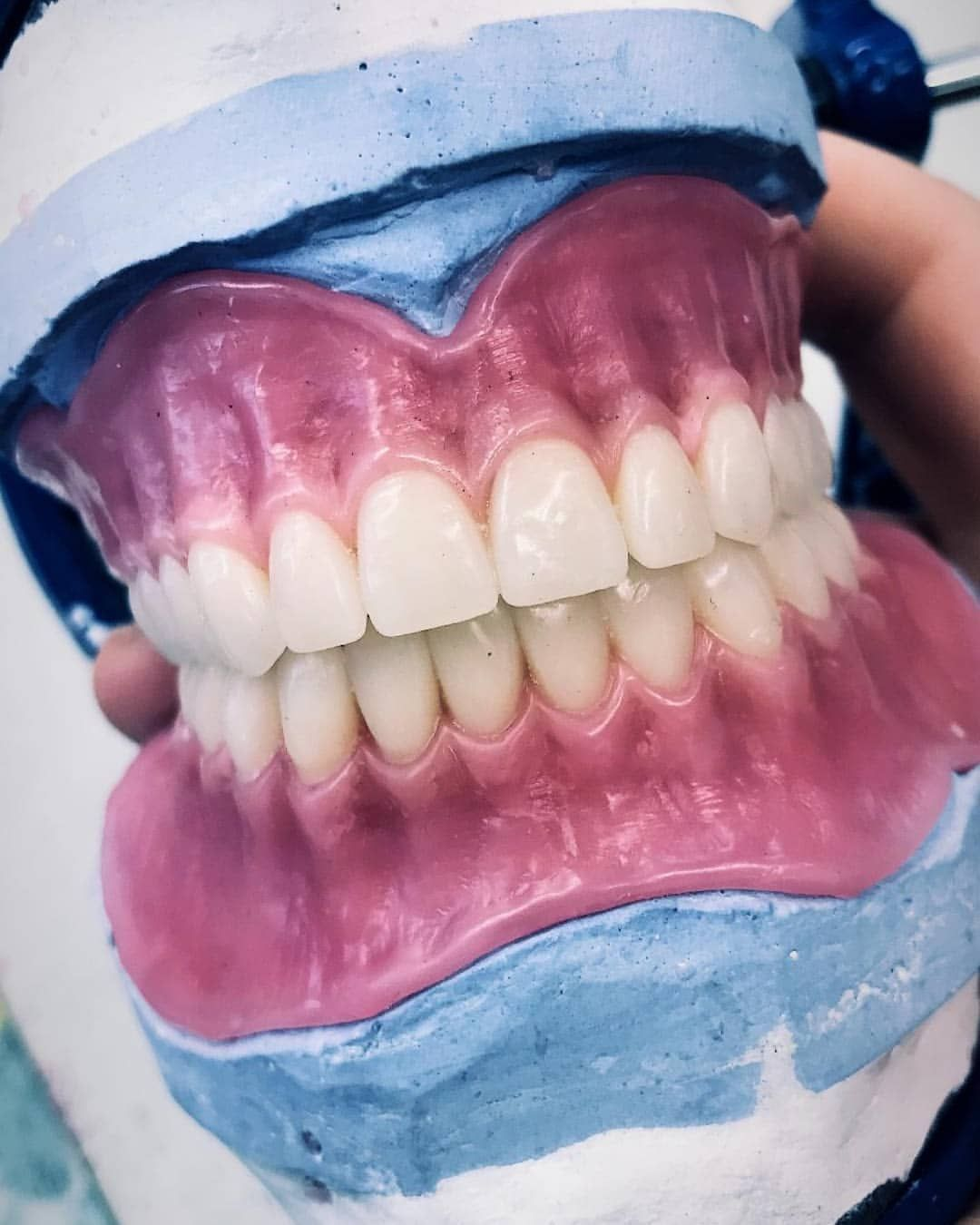Placid Dental Surgery Before And After Oralhealththerapist Dentalsurgeryfood Teeth Implants Dental Dentures Dental Implants Cost