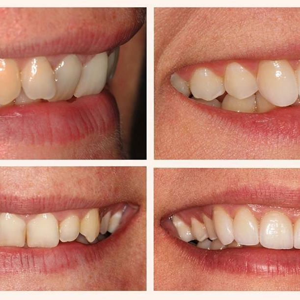 Just completed a very challenging esthetic case with excellent results. Patient's main goal was to achieve straighter teeth and a more uniform smile. She was not interested in orthodontic treatment. Lithium Disilicate IPS e.max crowns were used to restore canine to canine. The patient was ecstatic with the results exceeding her expectations! .  *Implant surgeries and restorations performed by Dr. Leo Aghajanian D.D.S.