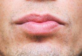 bd8327c0d7cbad4ec990851031d77a7e - How To Get Rid Of Dark Lips Caused By Smoking
