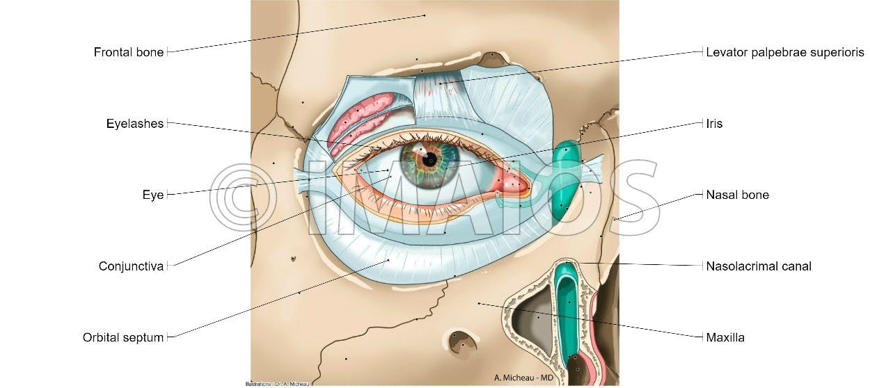 Lacrimal apparatus - Orbital septum: Superior tarsus, Medial ...