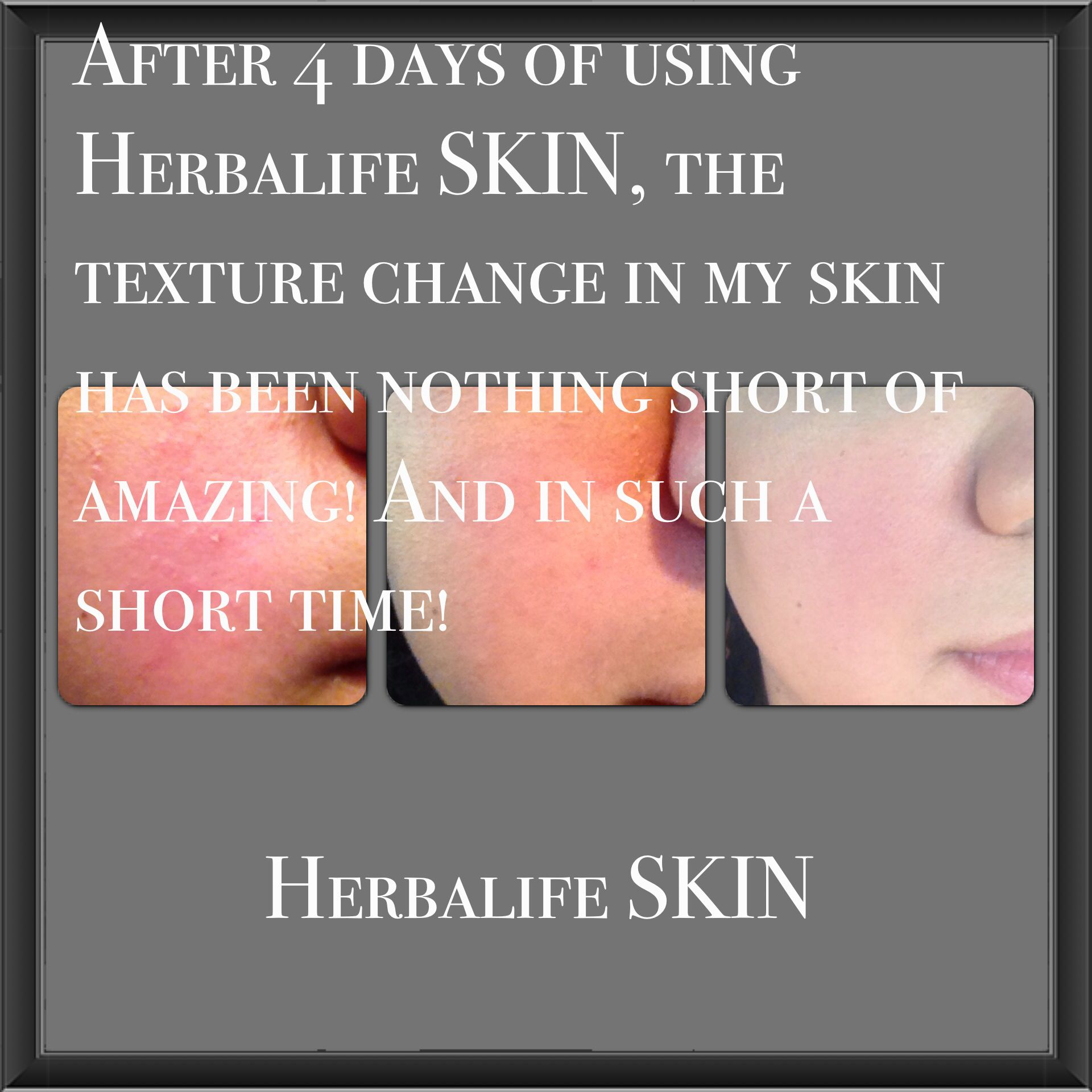 Care herbal life product skin - Great Results From Herbalife Skin For Your Custom Needs Order Mail To Heather