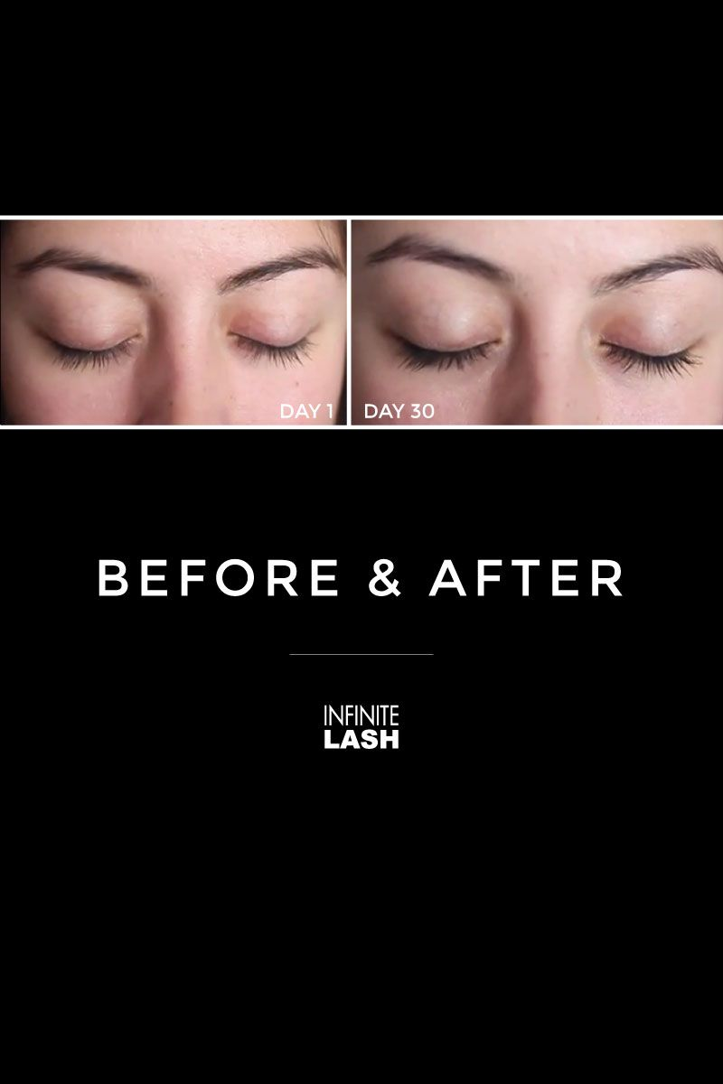 138e06fd2c3 Infinite Lash before and after: It is a safe eyelash enhancing serum that  contains natural