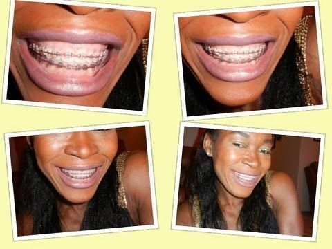 Whiten Your Teeth Even With Braces On Face N Hair Teeth