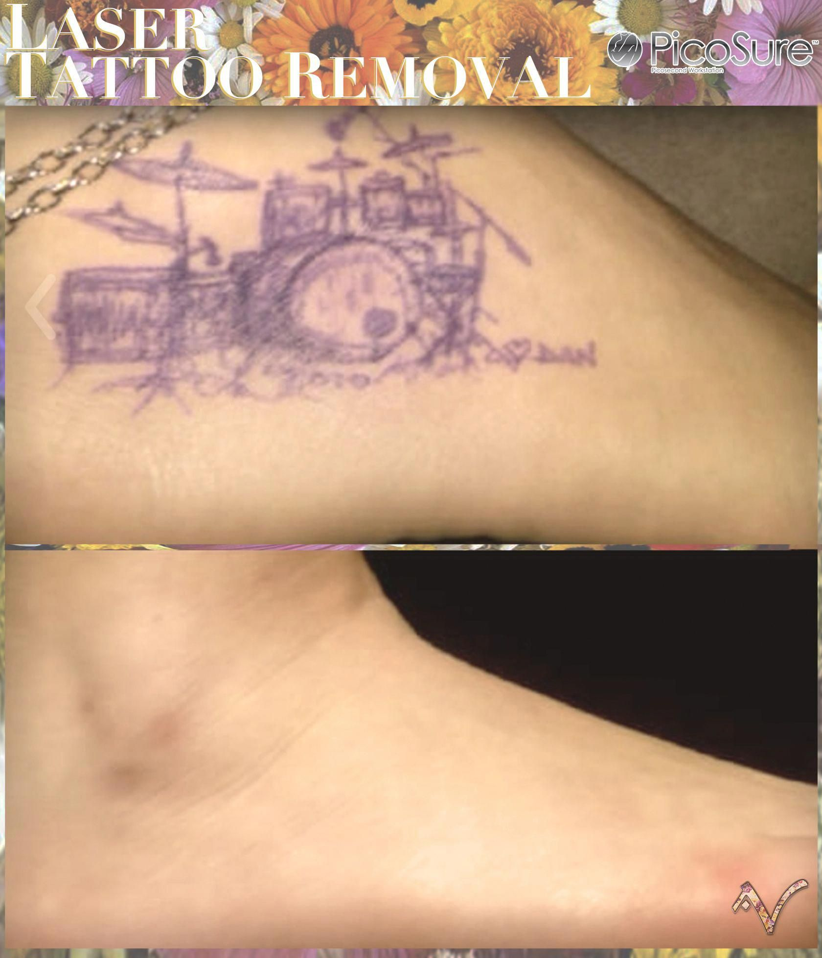 Picosure Laser Tattoo Removal #tattooremovalfacts | Tattoo Removal