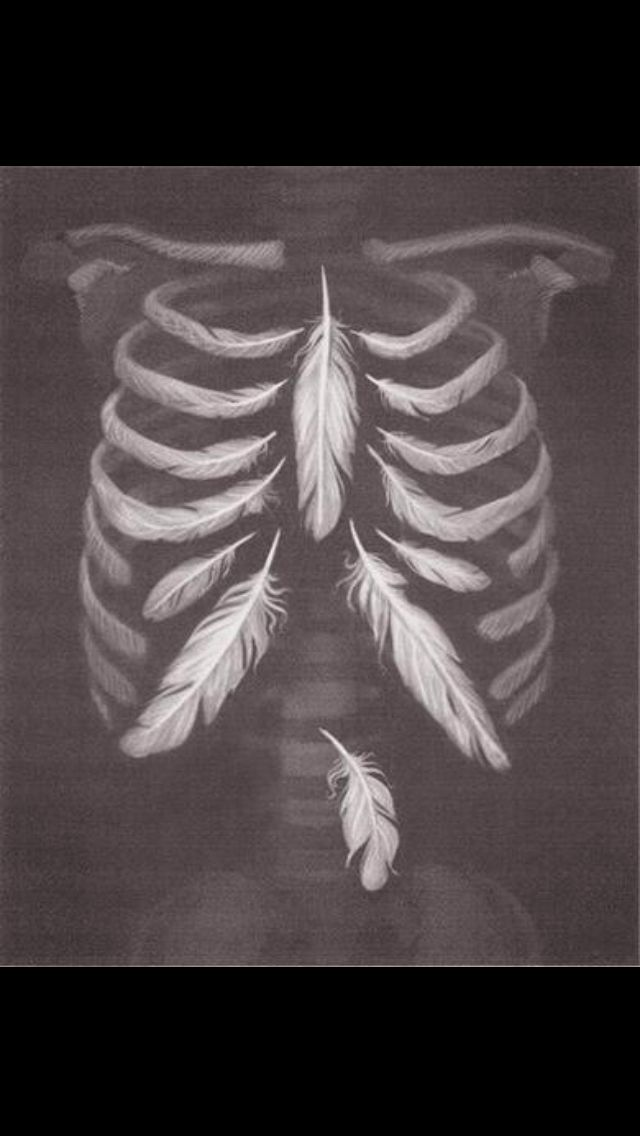Delicate ribs. #tietzesyndrome