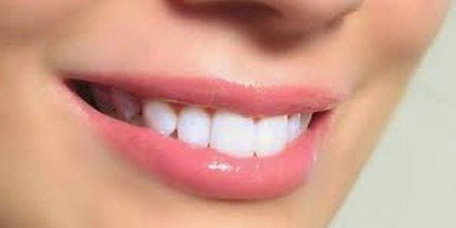 Tips Cara Menipiskan Bibir Tebal Dengan Cepat Kesehatan Gigi Dental Pemutih Gigi