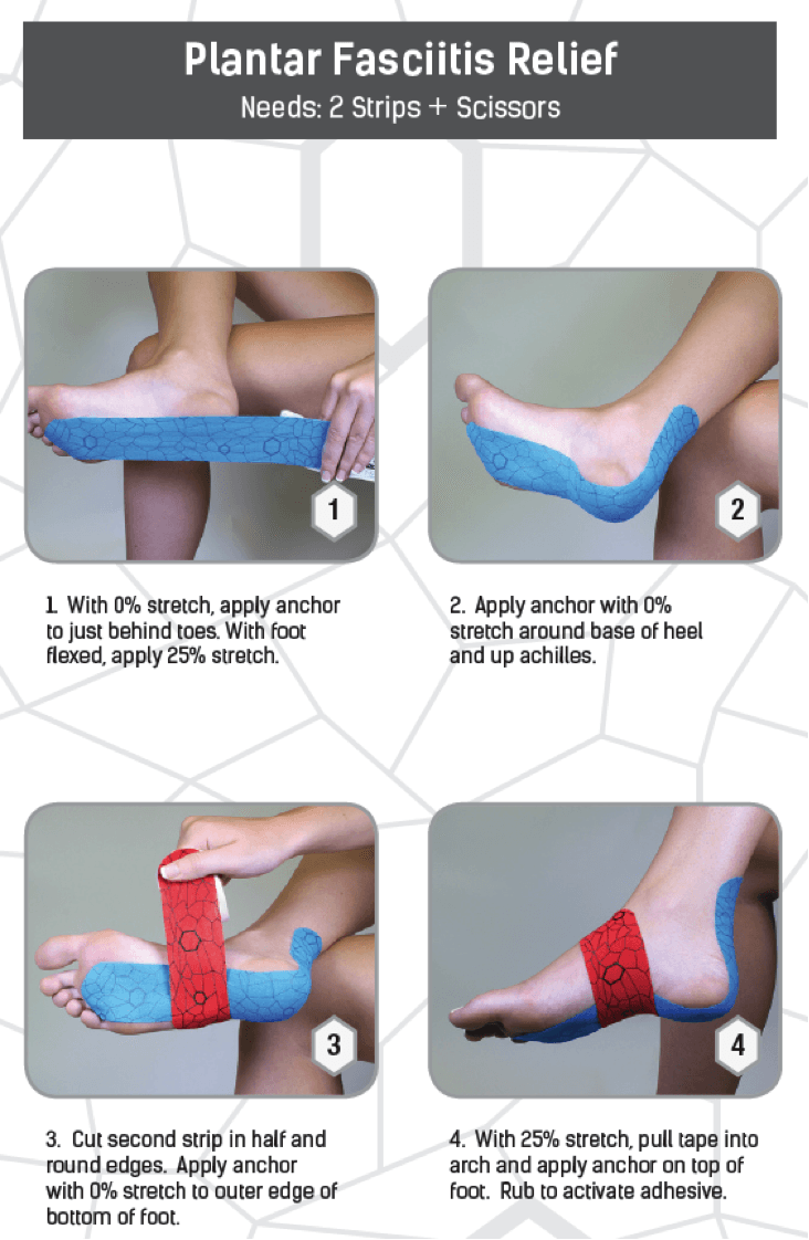 treatment for plantar fasciitis pain