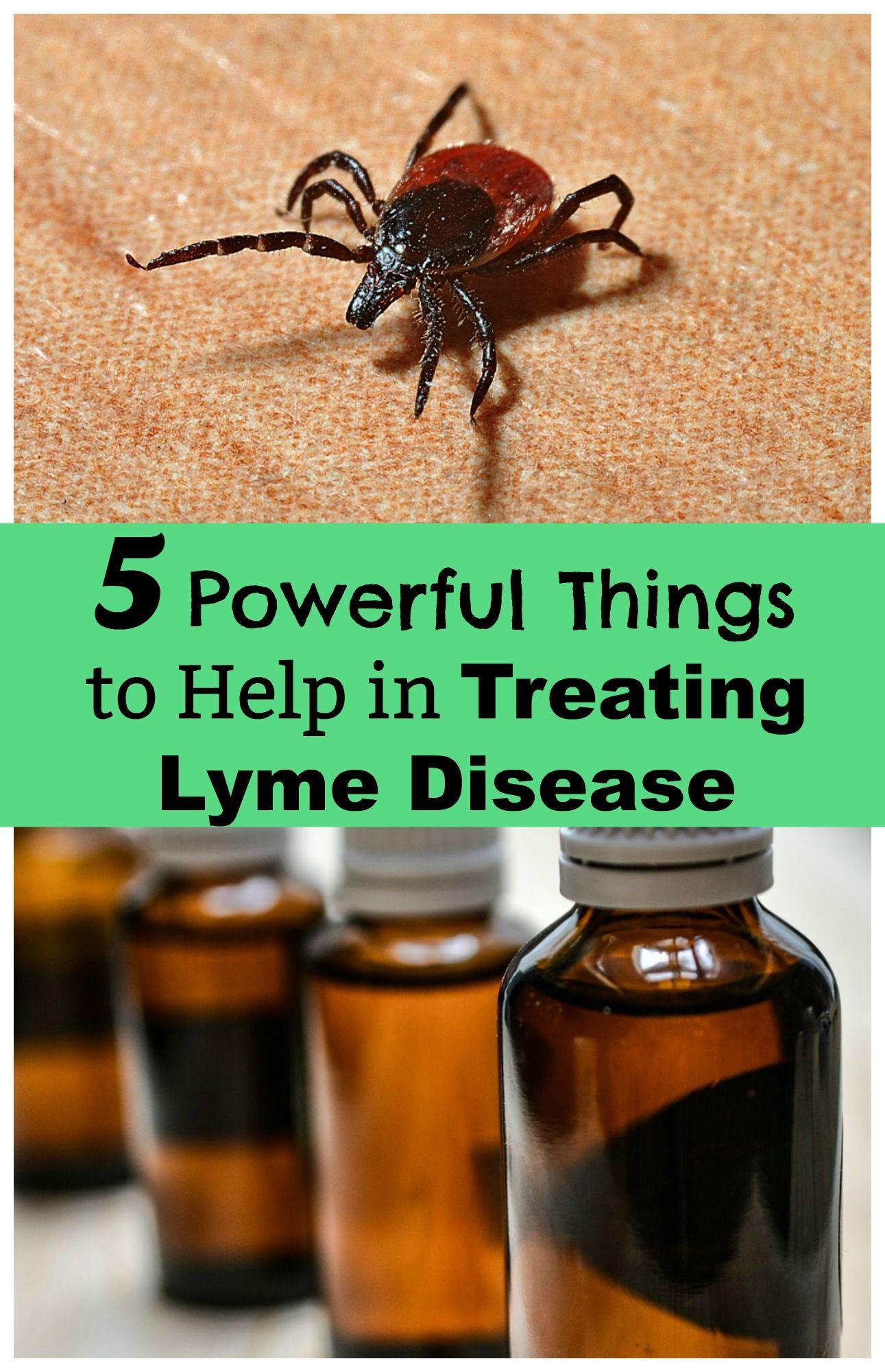 Five powerful things to help in treating lyme disease