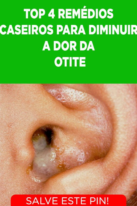 4 Remedios Caseiros Para Aliviar A Otite Ou Inflamacao Dos Ouvidos
